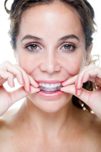 Learn about straightening your teeth as an adult with Invisalign in Virginia Beach.