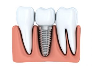Learn more about the benefits of dental implants in Virginia Beach.