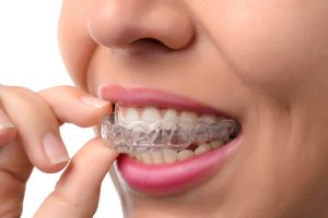 What makes me a good candidate for Invisalign in Virginia Beach, VA?