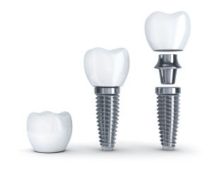 """Smile by Design helps patients overcome their dental fears by explaining the """"ins and outs"""" of a dental implant in Virginia Beach, VA."""
