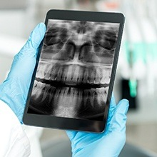 Digital dental x-rays on tablet computer