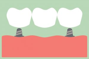 Dental implants in Virginia Beach should be cared for like natural teeth.