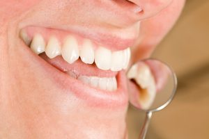 Dental implants in Virginia Beach are a comprehensive replacement option.