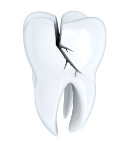 cracked tooth dental damage