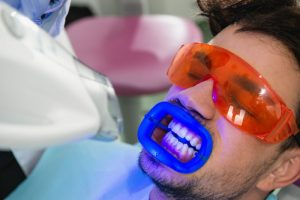 man with gums protected teeth whitening