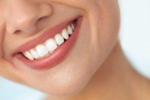 Closeup of smiling teeth
